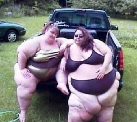 Foto Foto Gokil Orang Gendut Obesity   ASDWIRA BLOG