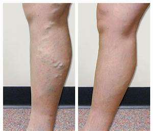 Before & After Photos - Vein Specialists of the Carolinas