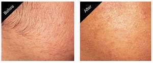 Brazilian Laser Hair Removal Before And After Photos ...