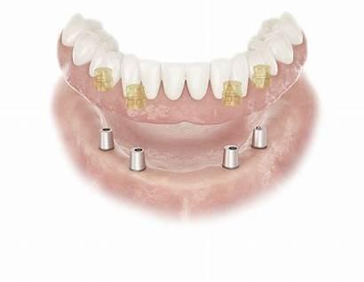 Conus Dentsply Implants Abutment Atlantis Dental Technology
