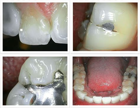 Dental Intraoral Camera FocusDent MD740, Dental Camera