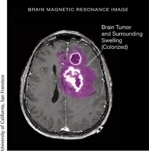 brain tumors treatment jama tumor surgery neuro site oncology network jamanetwork journals description