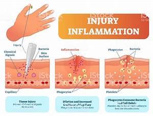 Injury Inflammation Biological Human Body Response Vector