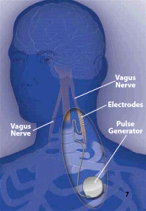 seizures highland chiropractic