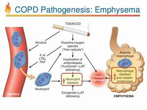 Image Result For Copd Pathophysiology  With Images
