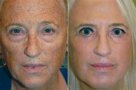 laser skin resurfacing tampa baycall dr