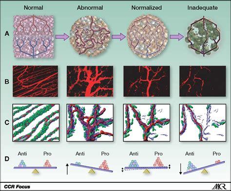 antiangiogenic therapy  glioblastoma current status