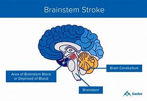 What Is A Brainstem Stroke