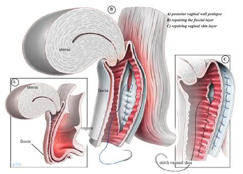Posterior Vaginal Wall & Perineal Body Repair - Your ...