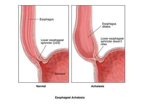 Diagram Of The Lower Esophageal Sphincter by Achalasia Dssurgery