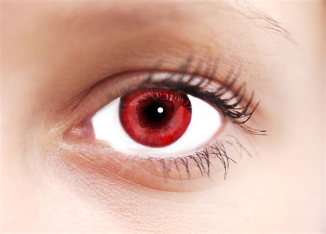Where Do Red Eyes Come From?