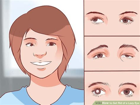 What Is A Lazy Eye How To Get Rid Of A Lazy Eye With Pictures Wikihow