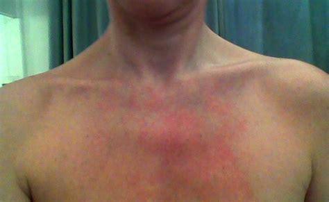 Mast Cells & Collagen Behaving Badly