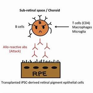 Detection of Retinal Pigment Epithelium-Specific Antibody ...