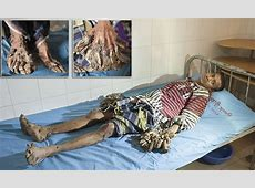 Bangladeshi man suffers rare condition that causes tree