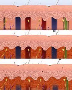 tattoo removal hurt pain scale  ways   hurt