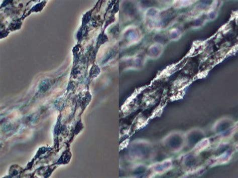 phase contrast microscopyu