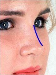 Как удалить бородавку с кончика носа