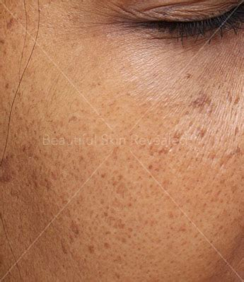 houston cosmetic dermatology laser center paul friedman md