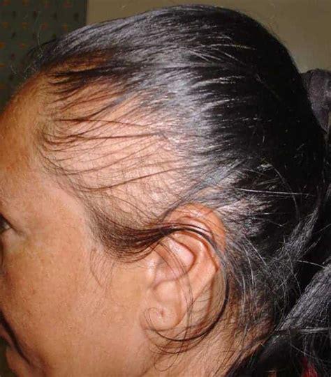 scarring alopecia natural treatment sheideas