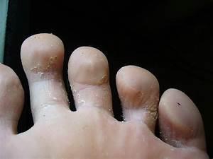 Грибок на пальцах кандида