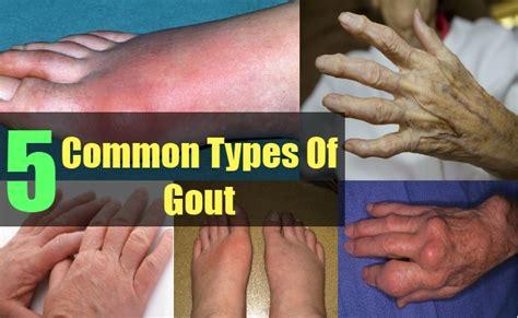 common types  gout arthritis body pains