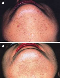 Treatment Of Pseudofolliculitis With A Pulsed Infrared Laser