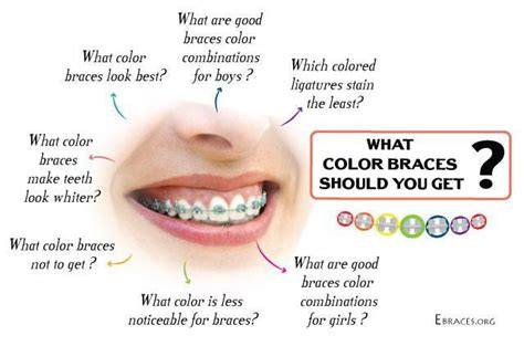 What Color Should I Get by You Don T To Be A Genius To Choose Braces Colors