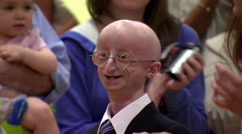 teen  progeria sam berns dies parents continue