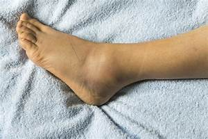 Swollen Feet  15 Causes  Treatments  And Home Remedies