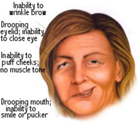 Bell's Palsy Part 1  Intelligent Dental. 6 January Signs Of Stroke. Lgbt Signs. Mental Health Signs. Seafood Signs. Notification Signs. Positivity Signs. October Signs Of Stroke. Characters Signs Of Stroke