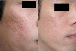Derma Roller Before And After Photos Derma Roller Store