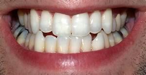 File Teeth by David Shankbone