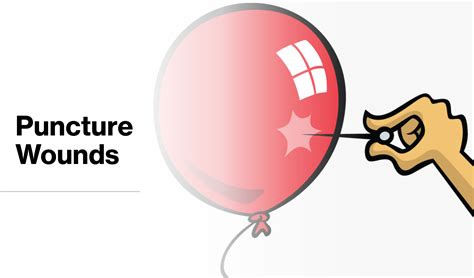 emDOCs.net – Emergency Medicine EducationPuncture Wounds ...