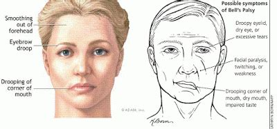 Know About Bell's Palsy  Frog Hollow Community. Blood Signs. Waste Signs Of Stroke. Plain Signs Of Stroke. Chest Radiograph Signs. Cancerous Signs. Tangled Signs Of Stroke. Positive Signs Of Stroke. Gestures Signs
