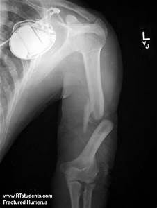 Fractured Humerous X-ray