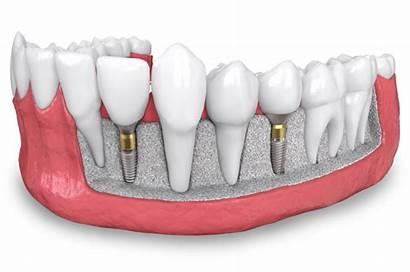 Dental Implant Bone Implants Grafting Dentures Surgery
