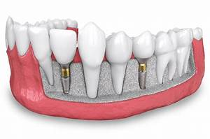 Bone Grafting - Omsa Oral Surgery Group