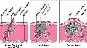 Acne Medicine for Mild and Severe Acne