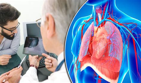 Chest Infection And Cough Could Be Sign Of Lung Disease. Time Warner Cable Nyc Brooklyn. How Much Is Lasik For Astigmatism. Pillar Of Truth Bible Institute. Reproduction And Inheritance Lexus Es Cost. Stand Up In It Theodis Ealey. Internet Providers Fort Myers. Most Effective Alcoholism Treatment. How Effective Are Home Security Systems