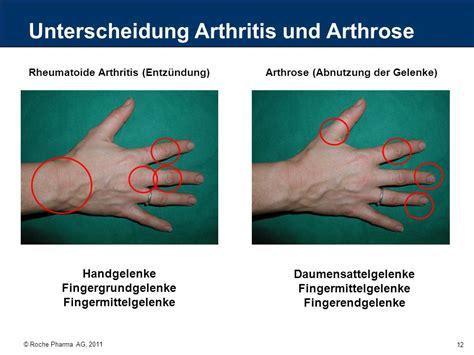 Therapie arthritis