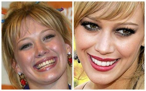how cardi b teeth use to look too big and like dentures teeth pinterest smile