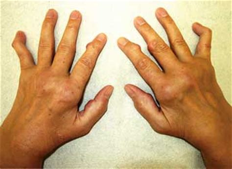 psoriasis arthritis knieschmerzen