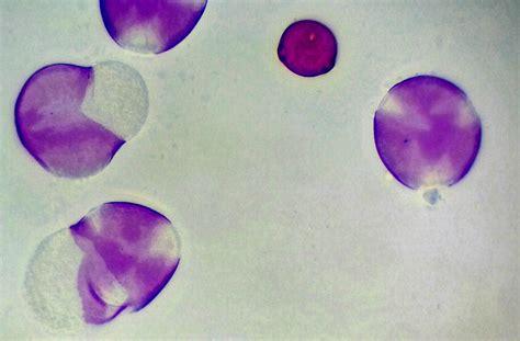 jean louis yaich pollen poirier vegetaux mikroscopia