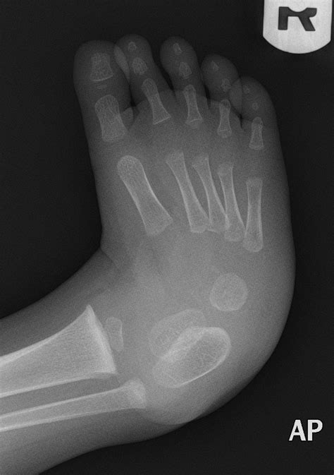 The condition is also known as talipes or talipes equinovarus. Talipes equinovarus (clubfoot)   Image   Radiopaedia.org