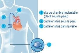 cath ter chambre implantable diffusion perfusion suffusion transfusion encyclopédie