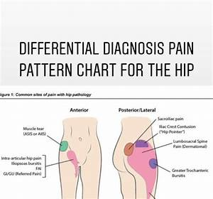 Hip Pain Location Diagram