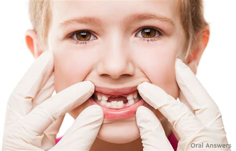 Cavities In Baby Teeth Should You Get Baby Teeth Filled