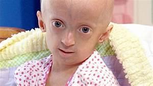 Children Living With Progeria: Inside Their World - ABC News