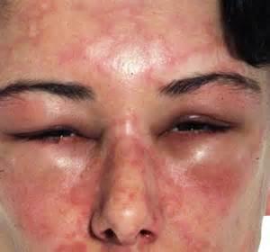 Hives and Angioedema - Dermatological diseases - ePharmaPedia  Hives Angioedema